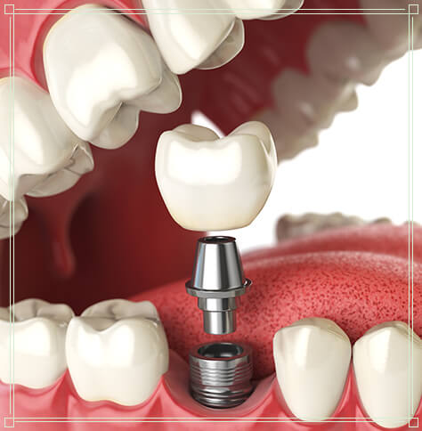 graphic of dental implant being placed in lower jaw