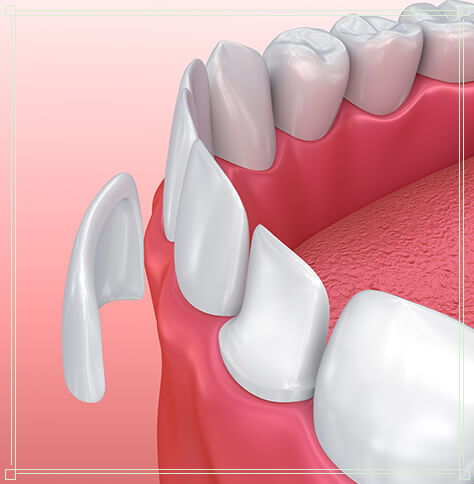illustration of a dental veneer being placed on a tooth
