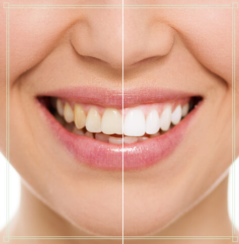 A before and after photo showing a woman's smile after professional teeth whitening.