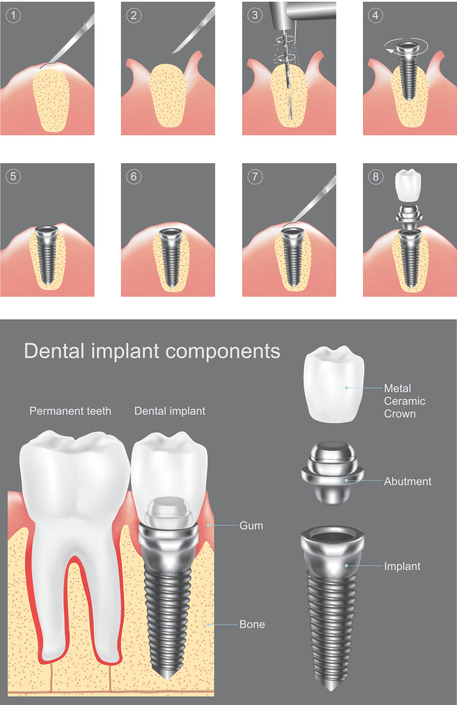 graphic of dental implant stages