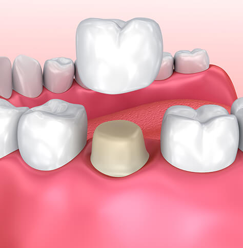 illustration of the dental crown process