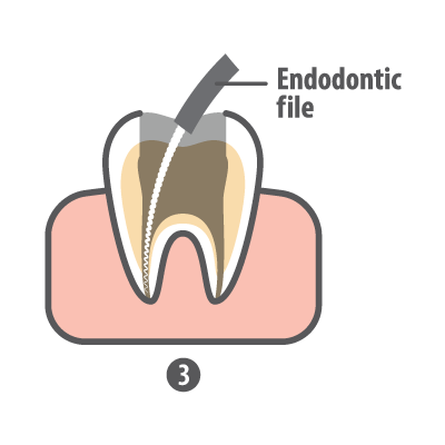 Root canal step 3 endodontic file