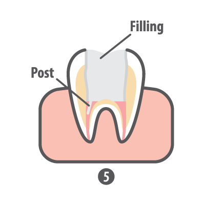 Root Canal Step 5 Filling