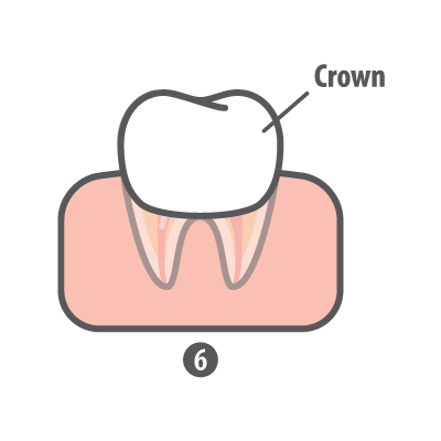 Root Canal Step 6 Crown