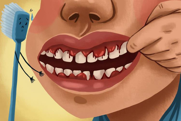 Photo of bleeding gums