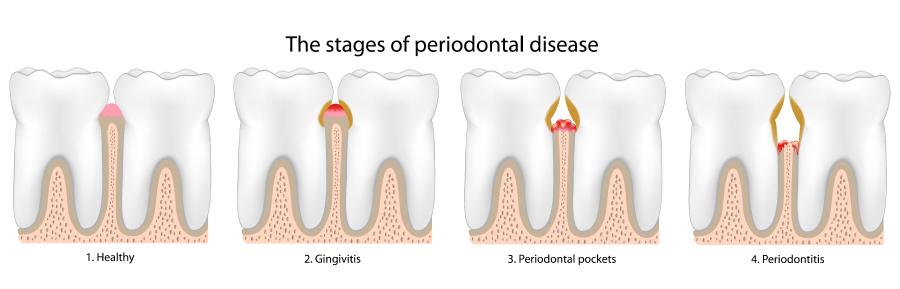 Graphic showing steps of gum disease or periodontal disease.